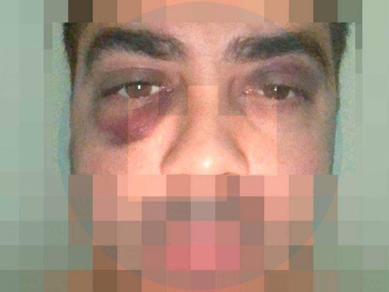 Aspecto que presentaba el alcalareño Antonio J.L. tras ser agredido por quince personas / LVA